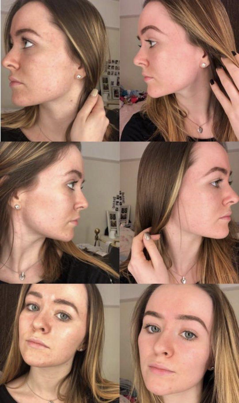 Amy Bowler carbon facial